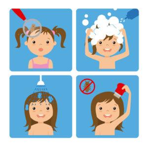 Ilustracija iz 4 koraka kako se uklanjaju vaške kod kuće pomoću šampona